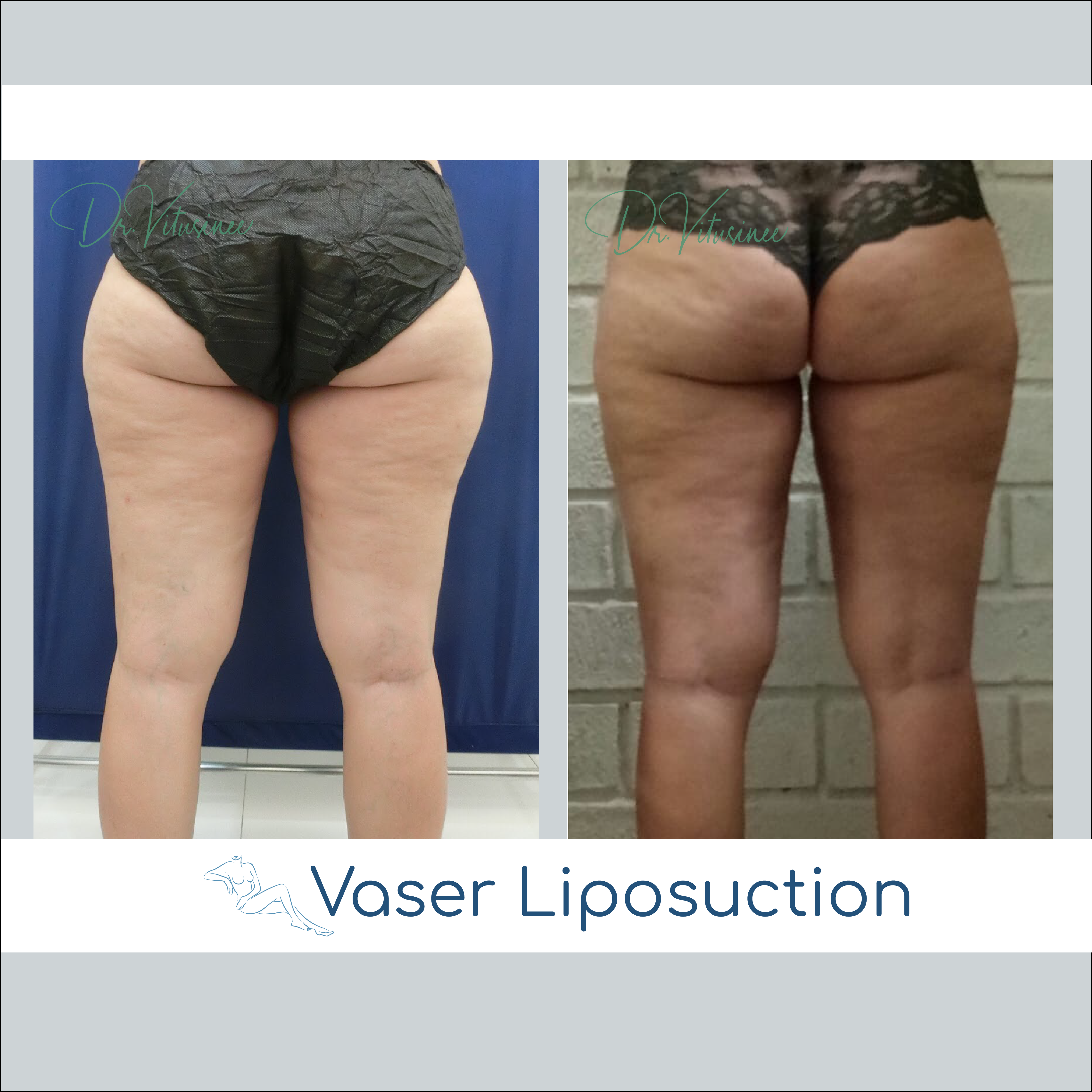 vaser liposuction thigh and hip
